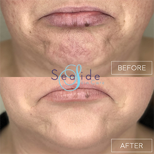 Botox Before & After Chin