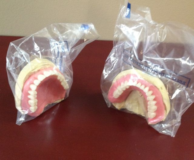 The dentures are returned to us in wax. Today's visit is to verify all our choices. Are we happy where the teeth are placed? Are we happy with the color? These are the permanent teeth, but everything else is still in wax. We can still change and modify, if necessary. Again, we want to give Eliason Dental Lab a shout out for helping us with this project: Eliason Dental Lab, 190 Riverside St., Unit 6B. Portland, ME 04103 (207) 774-7881 http://www.eliasonlab.com