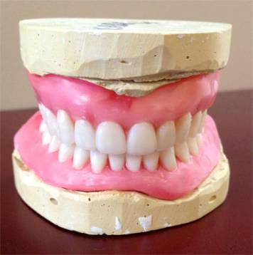 This is the way the denture looks in wax. It has an ideal overjet/overbite, and the tooth color is shade A1.