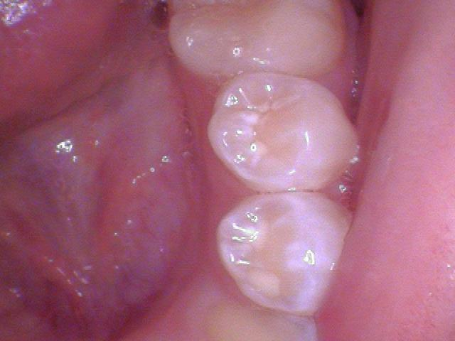 Teeth #'s 20 and 21 - Examples of teeth that have had fluoride. Frosty white appearance.