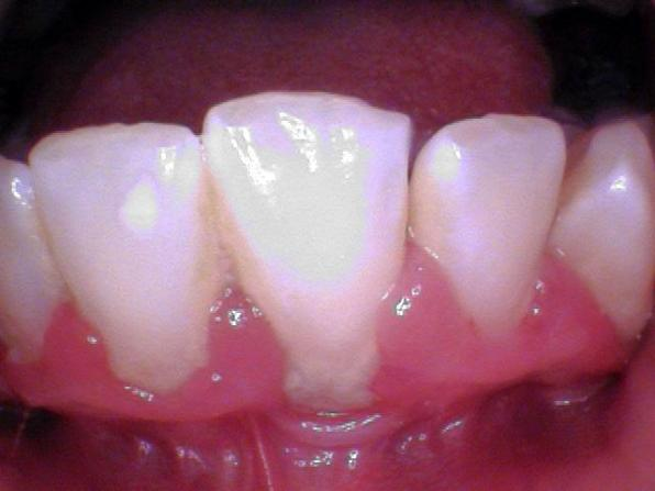 Deep Scaling and Root Planning (buccal)(before)