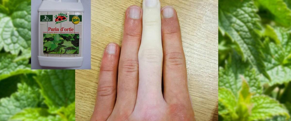 Se blanchir la peau au purin d'ortie  pour combattre le racisme : Une idée de génie ?