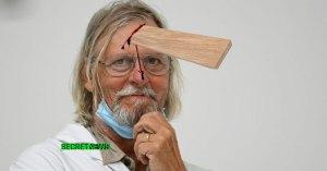 Le professeur Didier Raoult visé par une plinthe : 12 points de suture à l'égo