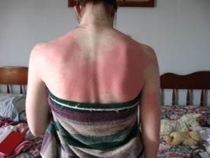 Солнечный ожог: народное лечение