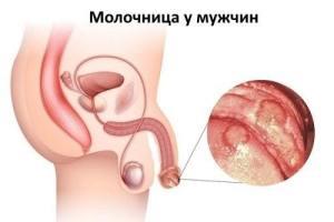 молочница у мужчин