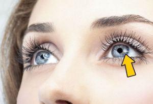 Ячмень на глазу - народное лечение