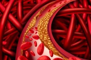Как предотвратить инсульт: профилактика опасного состояния
