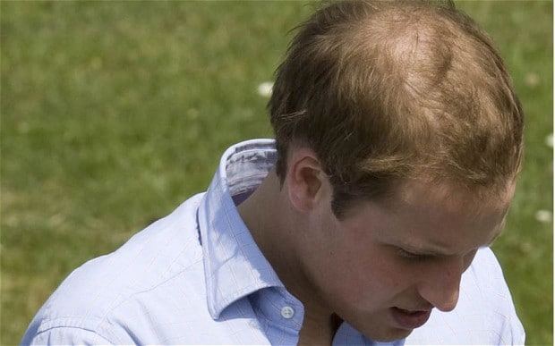 Cure For Thinning Hair Scientists Find Plucking
