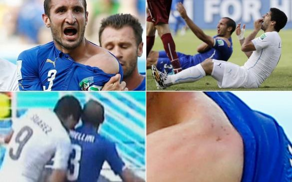 Image result for suarez biting chiellini