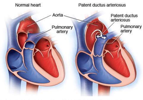 Apakah Jantung Bocor Bisa Sembuh Tanpa Operasi