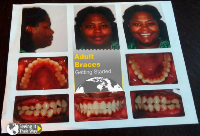 Adult Braces Getting Started
