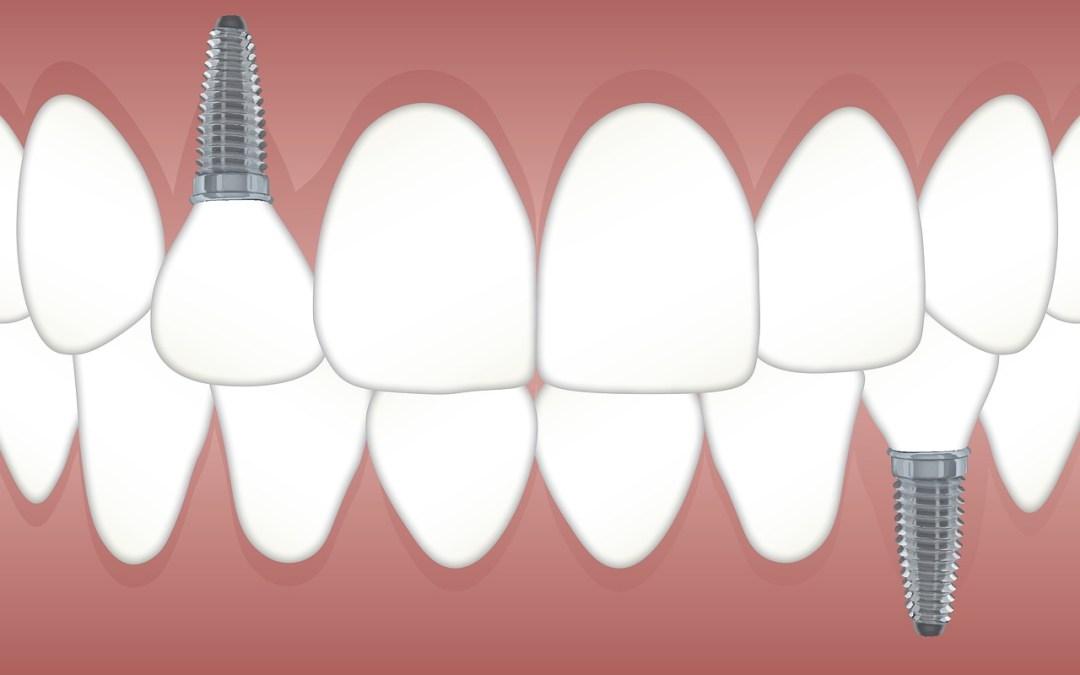 İsviçre implantoloji