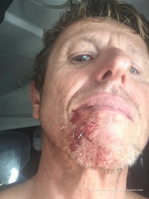 Die Wunde im Gesicht hat Dick selber zusammen getackert.