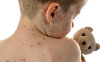 Photo of الصحة تطلق الحملة القومية للتطعيم بالمجان ضد الحصبة والحصبة الألمانية 8 مارس الجاري
