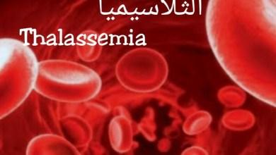 Photo of الثلاسيميا او انيميا البحر الابيض المتوسط.. تعرف على الاسباب والاعراض