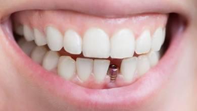 Photo of د.عبد التواب خلف: اختيار المريض المناسب شرط اساسى لنجاح زراعة الاسنان