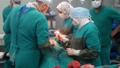 Photo of وزيرة الصحة: مبادرة الرئيس لـ«قوائم الانتظار» أجرت 365 ألف عملية جراحية عاجلة