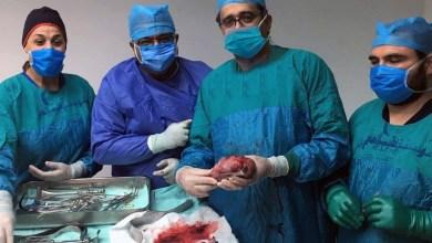 Photo of رغم ازمة كورونا..معهد ناصر يجرى عملية ازالة ورم ضخم لطفل عمره 12عاماً