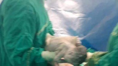 Photo of ثالث حالة ولادة لمصابة بكورونا داخل المستشفيات التعليمية