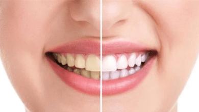 Photo of أطعمة تغير لون أسنانك