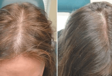 Photo of أسباب غير متوقعة لتساقط الشعر