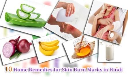 Jalne ke Nishan Hatane ke Upay, Home Remedies for Skin Burn in Hindi