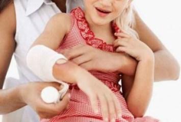 घाव जल्दी भरने के उपाय इलाज और घरेलू नुस्खे