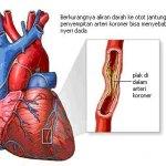 Penjelasan Seputar Penyakit Jantung