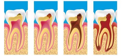 hersagi obat sakit gigi