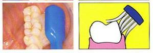 Sikat Gigi versus Dental Flossing (3/6)