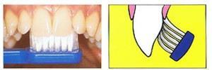 Sikat Gigi versus Dental Flossing (4/6)