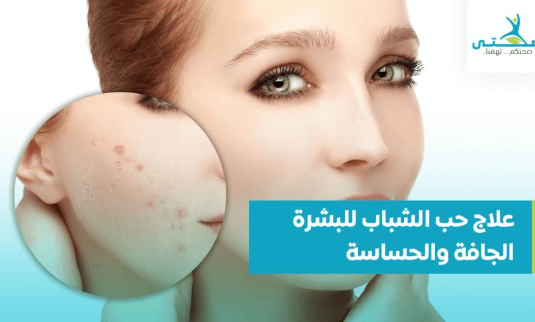 علاج حب الشباب للبشرة الجافة والحساسة