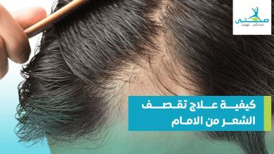 صورة كيفية علاج تقصف الشعر من الأمام نهائياً