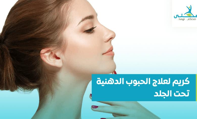 كريم لعلاج الحبوب الدهنية تحت الجلد