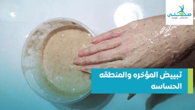 تبييض المؤخره والمنطقه الحساسه