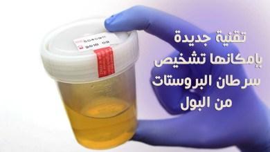 تشخيص سرطان البروستات من البول