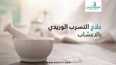 علاج التسرب الوريدي بالاعشاب
