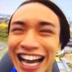 中島健人のハゲ