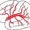 脳卒中、脳梗塞、脳出血、くも膜下出血の症状は?対応と治療方法、予防策は?