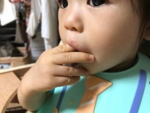 手足口病の子供