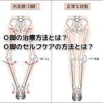 O脚の患者さんへの治療方法とアドバイス方法とは?「倉田正純先生の見解について」