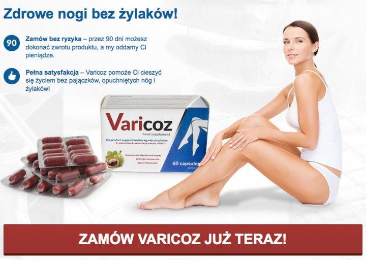 varicoz-zdrowe-nogi