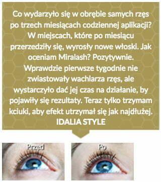 miralash-op1