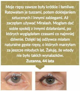 miralash-op7