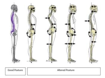 posture class