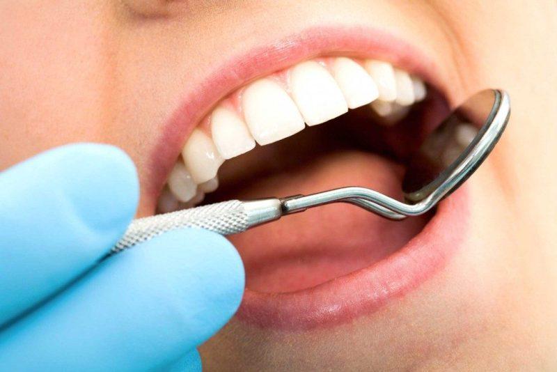 4. Votre dentiste a de mauvaises nouvelles à vous annoncer