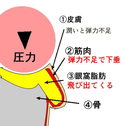眼窩脂肪ヘルニアの原因の解説