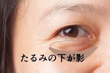 目の下のたるみの下が影になっている画像