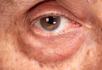 重度の眼窩脂肪の突出の例の画像