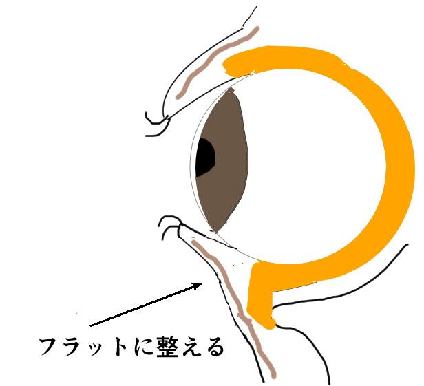 目の下のたるみの施術の説明図3